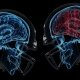 Brain Injury Lawyers & Car Accident Attorneys in Mobile, AL - TheTruth About TBI's